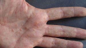 dyshidrotic eczema hand 2